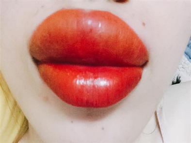 Phun môi bị sưng có đáng lo ngại