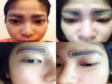 Cách khắc phục phun lông mày bị lệch